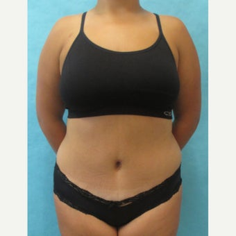 35-44 year old woman treated with Tummy Tuck after 2572408