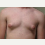 17 or under year old man treated with Breast Reduction before 3093505