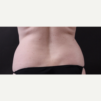 46 year old woman treated with CoolSculpting after 3168898