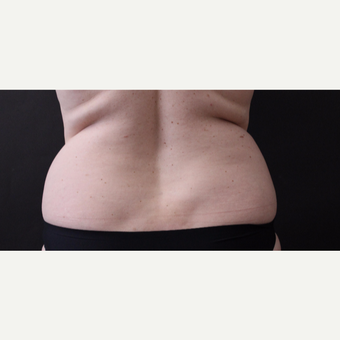46 year old woman treated with CoolSculpting before 3168898