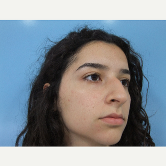 18-24 year old woman treated with Rhinoplasty before 3826224