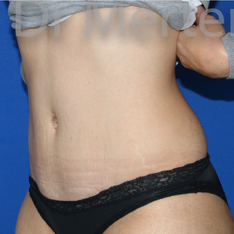 Tummy Tuck after 3599458