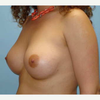25-34 year old woman treated with Breast Augmentation after 3019514