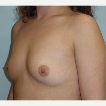 25-34 year old woman treated with Breast Augmentation before 3019514