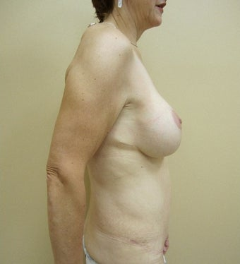 55-64 year old woman treated with Mommy Makeover after 1650196