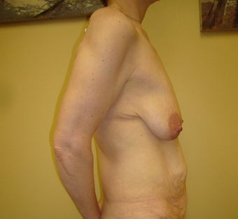 55-64 year old woman treated with Mommy Makeover before 1650196