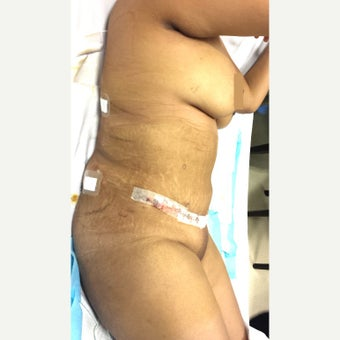 35-44 year old woman treated with Panniculectomy after 2116647