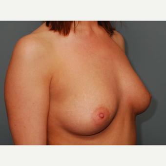 25 y/o Dual Plane Breast Augmentation before 3065865