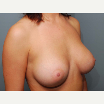 25 y/o Dual Plane Breast Augmentation after 3065865