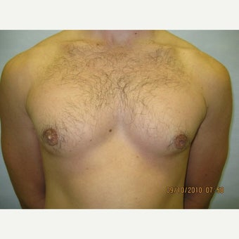 25 year old man treated with Male Breast Reduction