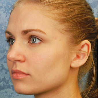 Rhinoplasty before 3124725