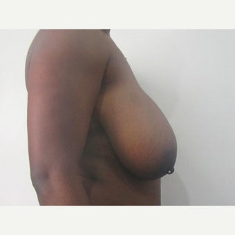 27 year old woman treated with anchor incision Breast Reduction before 2550411