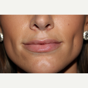 25-34 year old woman treated with Juvederm after 3130055