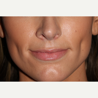 25-34 year old woman treated with Juvederm before 3130055
