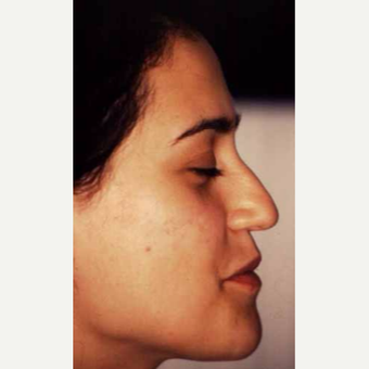 25-34 year old woman treated with Rhinoplasty before 3521224