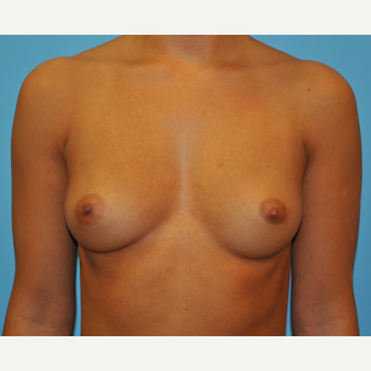 28 year old woman treated with Breast Augmentation, B to DD cup before 3493907