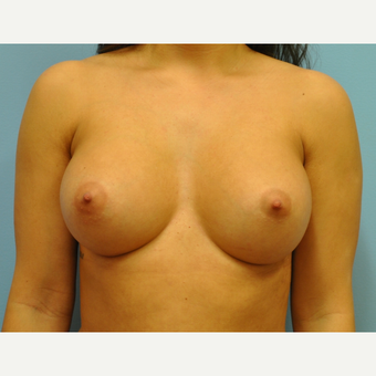 28 year old woman treated with Breast Augmentation, B to DD cup after 3493907