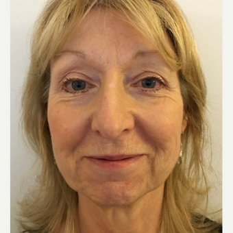 Lower face and neck lift before 3112423