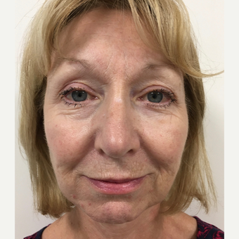 Lower face and neck lift after 3112423