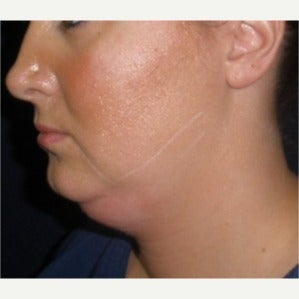 25-34 year old woman treated with Kybella before 2121328