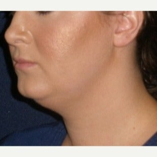 25-34 year old woman treated with Kybella after 2121328