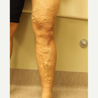 45-54 year old woman treated with ClariVein before 2081407