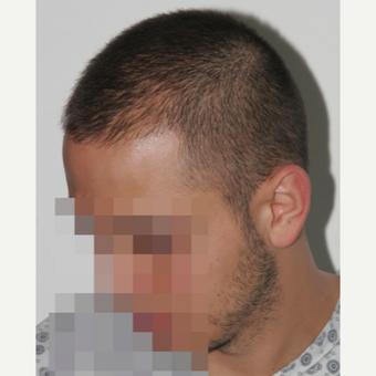 26 years old man treated with FUE Hair Transplant before 3068889