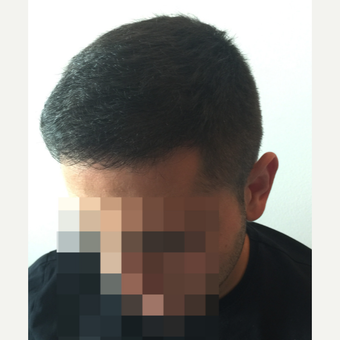 26 years old man treated with FUE Hair Transplant after 3068889