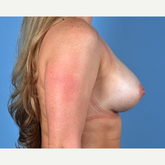 25-34 year old woman treated with Breast Augmentation after 3809975