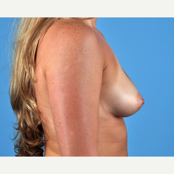 25-34 year old woman treated with Breast Augmentation before 3809975