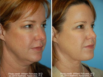 Neck Liposuction before 1389488