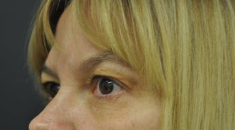 54 Year Old Woman Treated for Fine Lines Under Eyes With Exilis Elite after 1263333