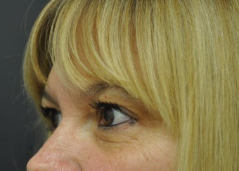 54 Year Old Woman Treated for Fine Lines Under Eyes With Exilis Elite before 1263333