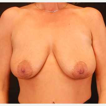 35-44 year old woman treated with Breast Lift with Implants before 3203244
