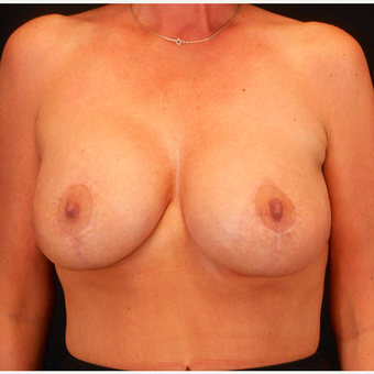 35-44 year old woman treated with Breast Lift with Implants after 3203244