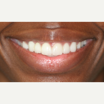 18-24 year old woman treated with Porcelain Veneers