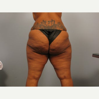 25-34 year old woman treated with Thigh Lift