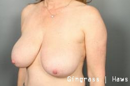 Breast Reduction before 1382546