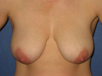 34 Year Old Breast Lift
