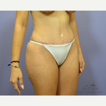 25-34 year old woman treated with Tummy Tuck after 3422024