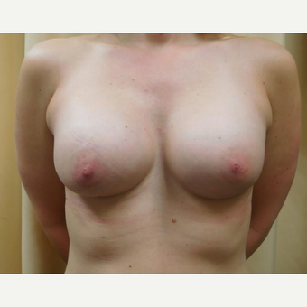 35-44 year old woman treated with Breast Augmentation after 3683315