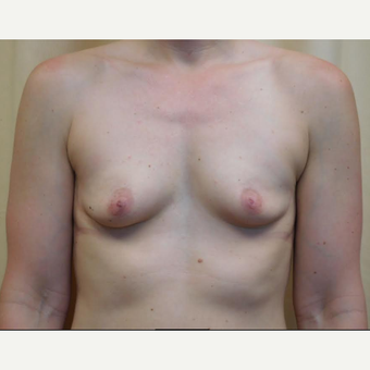35-44 year old woman treated with Breast Augmentation before 3683315