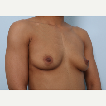 Breast Augmentation before 3459664