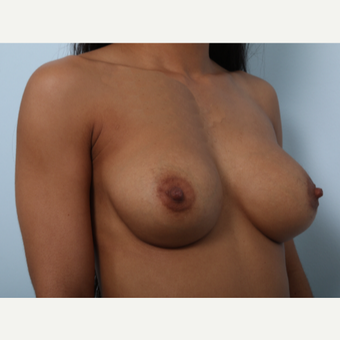Breast Augmentation after 3459664