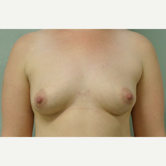 25-34 year old woman treated with Breast Fat Transfer before 3605267