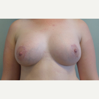 25-34 year old woman treated with Breast Fat Transfer after 3605267