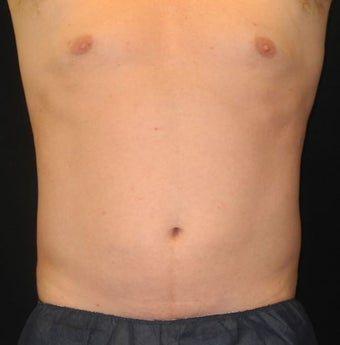 40 y/o male - CoolSculpting after 1322767