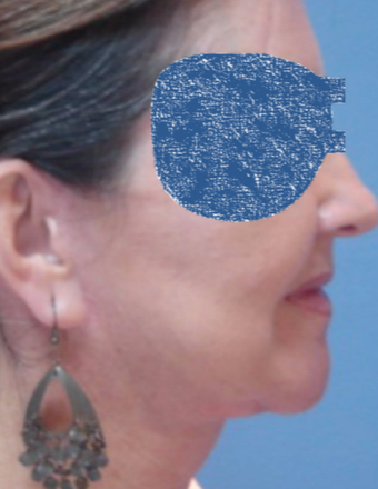 45-54 year old woman treated with Neck Lift