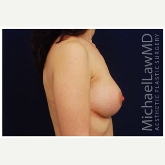 35-44 year old woman treated with Inspira Breast Implants after 1910996