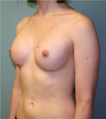 Young Woman Undergoes Breast Augmentation as part of Male to Female Gender Transformation 1190955